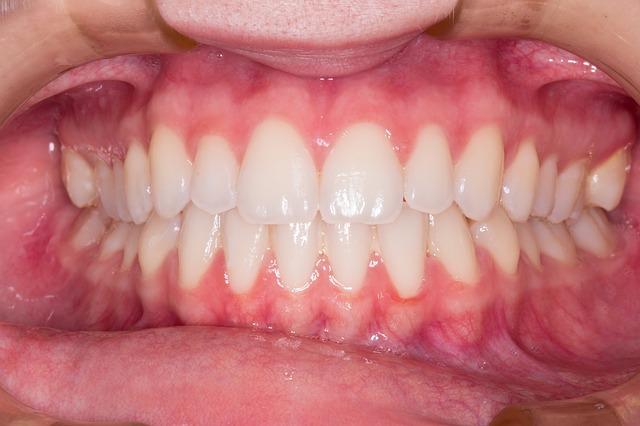 teeth-2339168_640