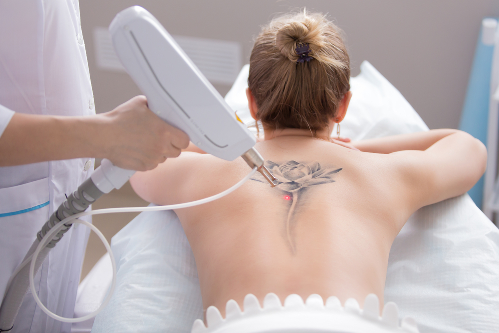 7 Things You Need To Know About Tattoo Removal