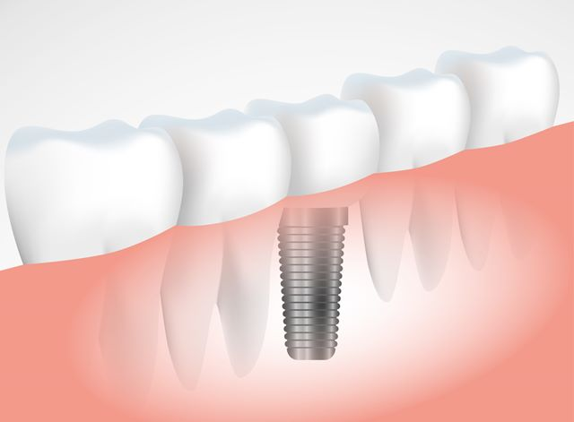 The Distinction Between Mini Implants & Dental Implants