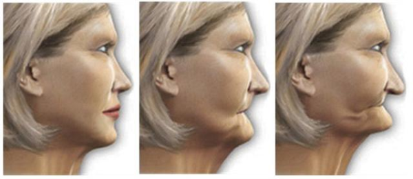 Dental Implants Can Improve Your Appearance