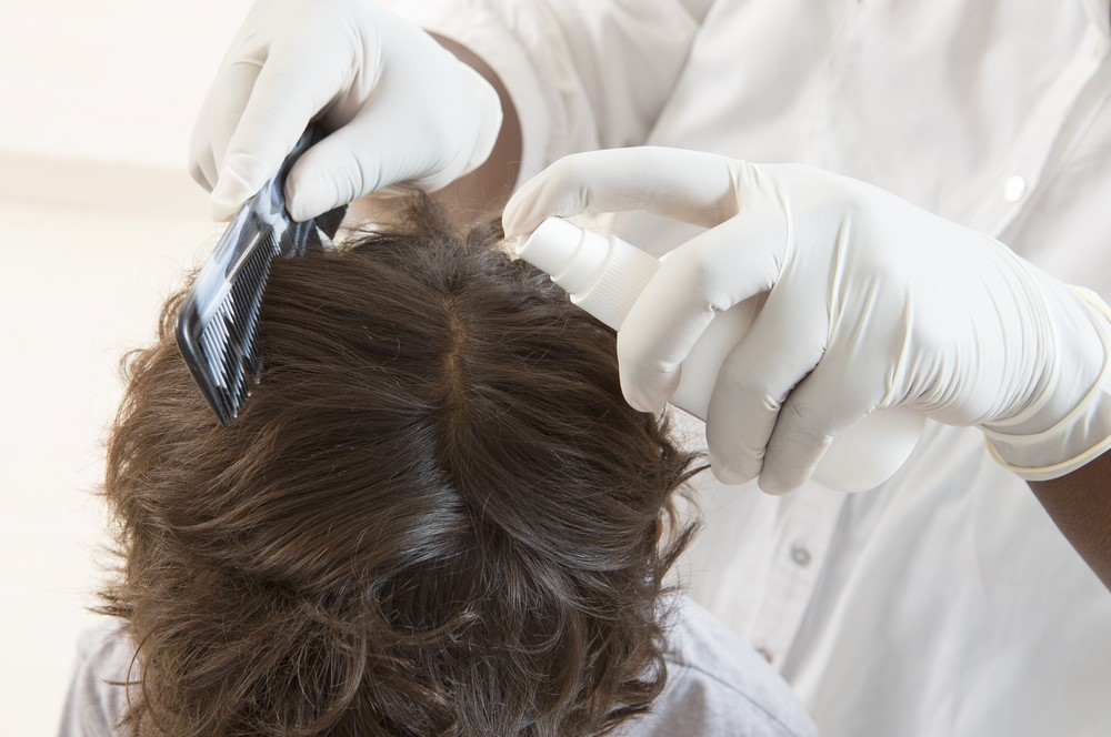 Key Tips on Lice Removal