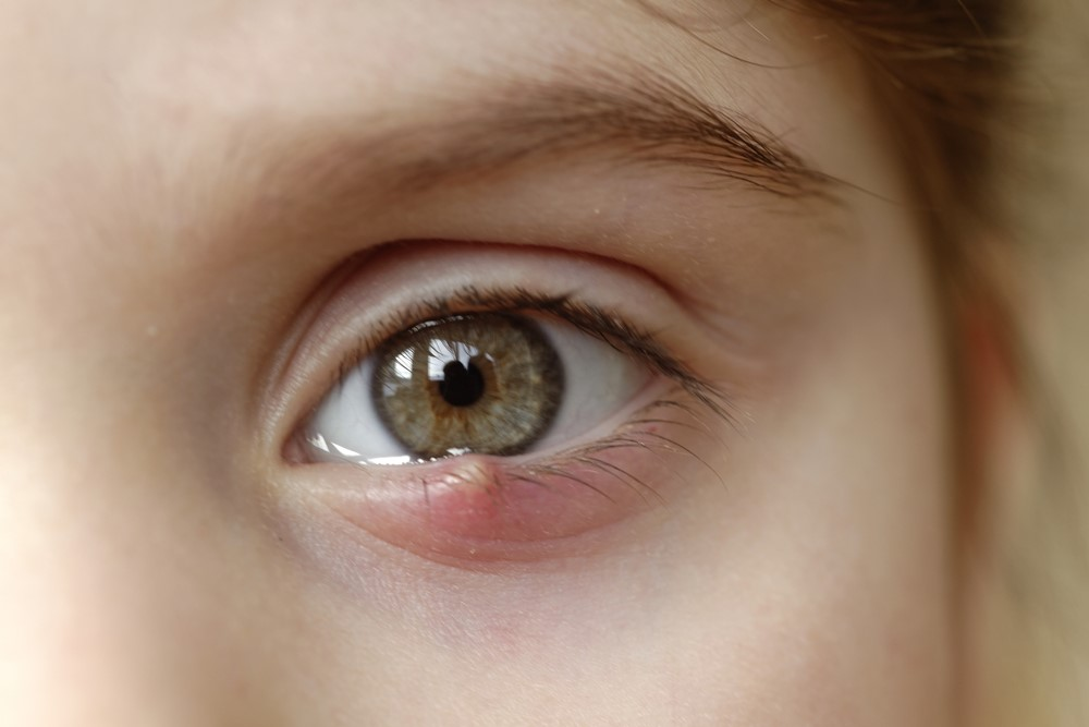 Blepharitis: What Is It and What Are Some Anterior Blepharitis Remedy Choices