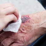 Key Tips On Keeping Your Wound Dry After An Injury