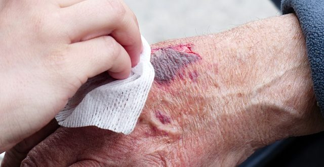 Keeping Your Wound Dry After An Injury