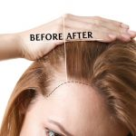 How Hair Replacement Syracuse Can Help Give You More Confidence