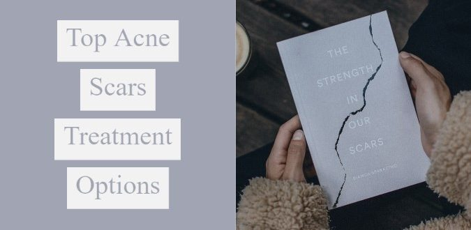 Top Acne Scars Treatment Options