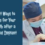 Best Ways to Care for Your Teeth after a Dental Implant