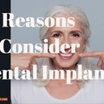 10 Reasons to Consider Dental Implants