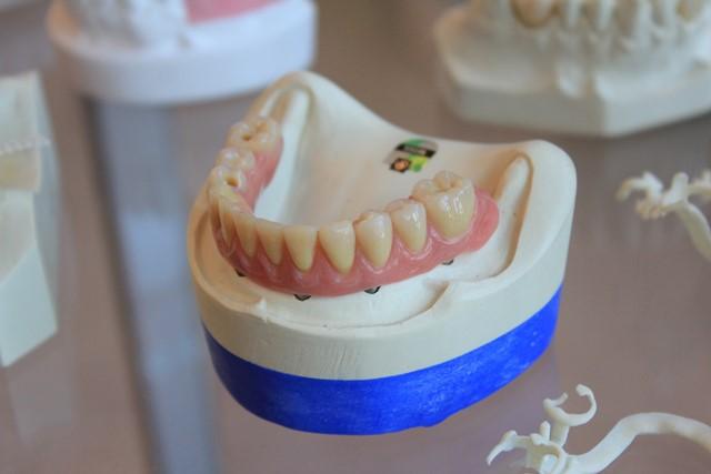 White Dental Fillings
