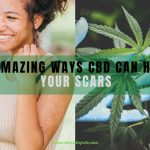7 Amazing Ways CBD Can Heal Your Scars