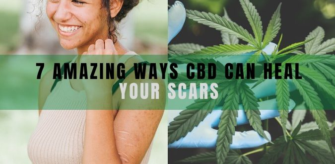 CBD Can Heal Your Scars