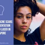 Removing Acne Scars and Pigmentation with Pico Laser in Singapore