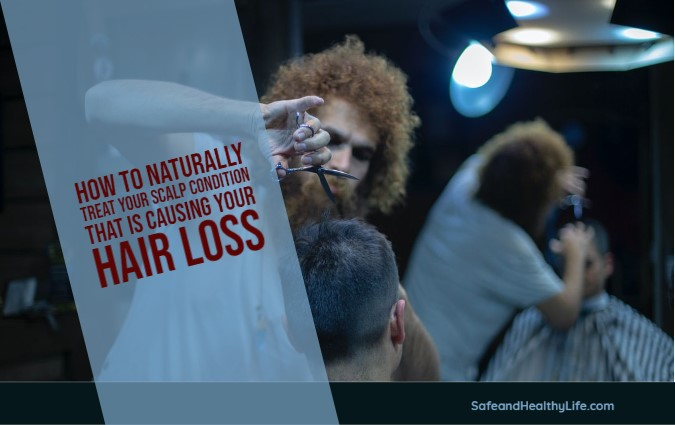 Scalp Condition That Is Causing Your Hair Loss