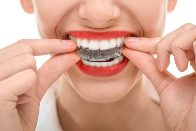 Benefits of Teeth Straightening