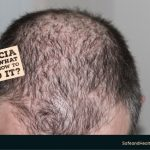 Alopecia Areata: What is it and How to Avoid it?