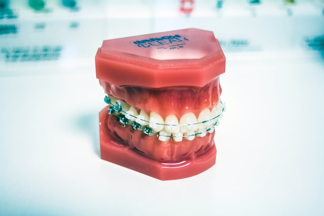 Braces used for dental purposes