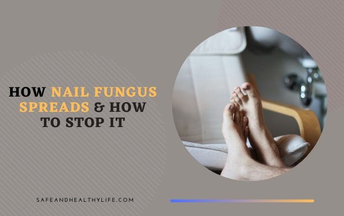 Nail Fungus Spreads