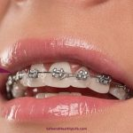 Can Adults Still Wear Braces?
