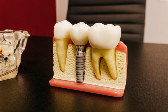 Choose Dental Implants Over A Bridge