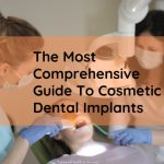 The Most Comprehensive Guide To Cosmetic Dental Implants