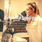 How to Get Rid Of Various Skin Conditions Like Skin Tags, Moles, and Warts?