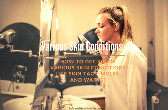 Various Skin Conditions
