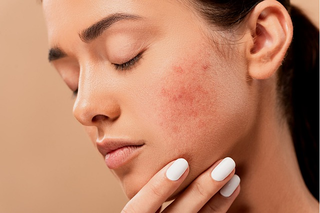 Causes of Skin Tags