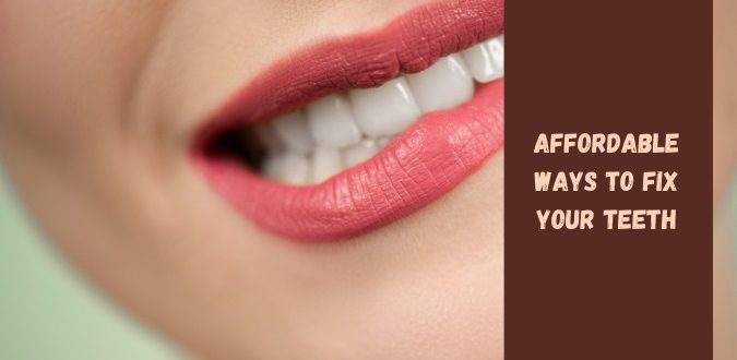 Fix Your Teeth