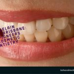Porcelain Veneers Brisbane: The Pioneers of Cosmetic Dentistry