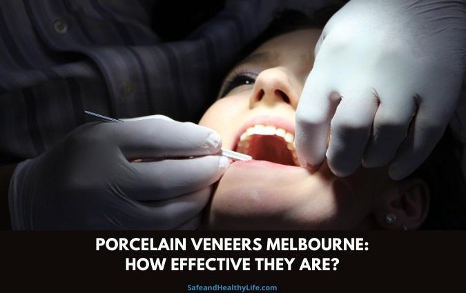 Porcelain Veneers Melbourne