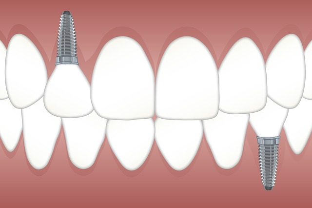 Related to Dental Implants
