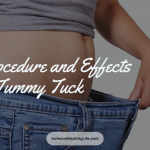 Procedure and Effects of Tummy Tuck