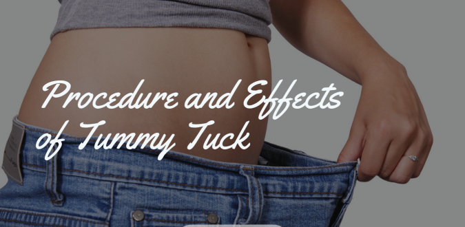 Effects of Tummy Tuck