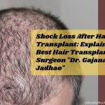 """Shock Loss After Hair Transplant: Explained By Best Hair Transplant Surgeon """"Dr. Gajanan Jadhao"""""""