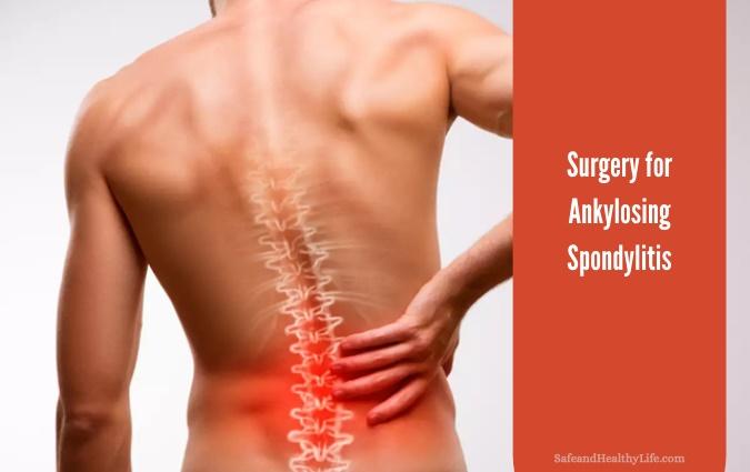 Surgery for Ankylosing Spondylitis